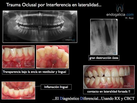 el trauma y el trauma oclusal por interferencia en lateralidad endogalicia