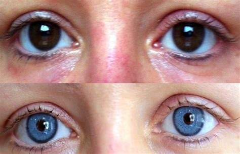 eye color surgery before and after can plastic surgery change your eye color to anything like