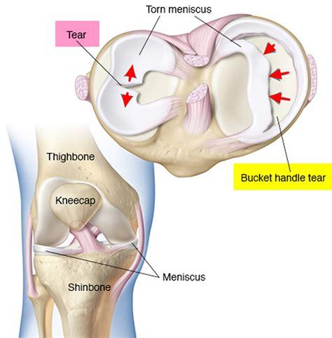 meniscus diagram diagram of the knee torn meniscus gallery how to guide