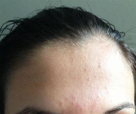 forehead acne weddingbee
