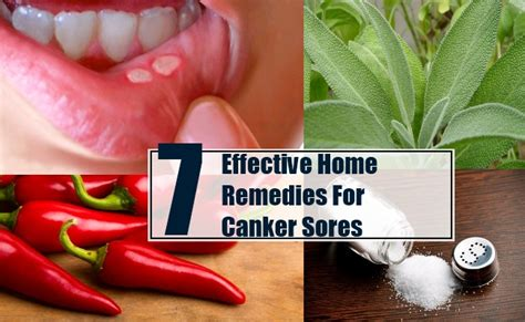 7 effective home remedies for canker sores treatments