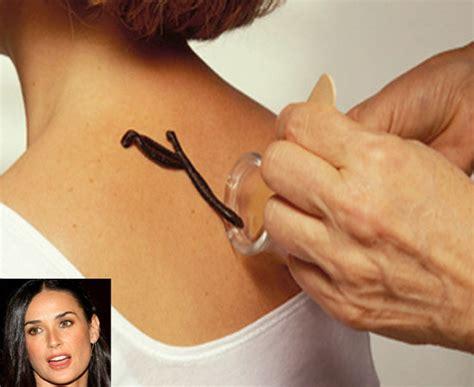 leech facial treatment 15 of the quirkiest celebrity beauty treatments ever demi