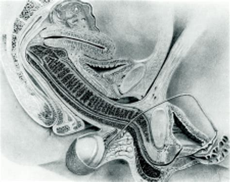 Sexual Cross Section by Magnetic Resonance Imaging Of And During Coitus And Sexual Arousal