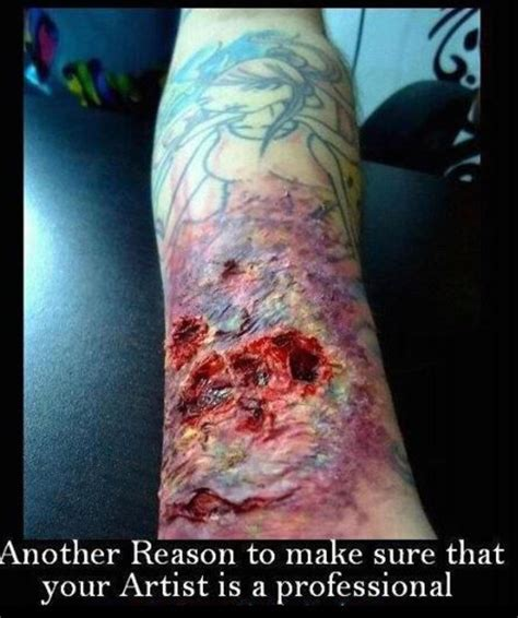 tattoo healing gone wrong image gallery infected tattoo video