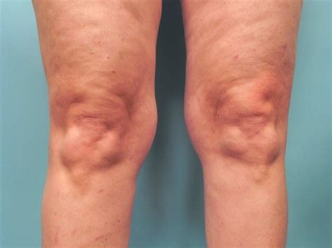knee lift surgery before and after slimlipo thigh before after