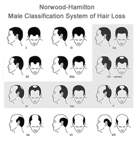hamilton pattern hair loss hair loss