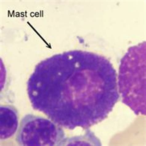 Detox And Mastocytosis by 191 Best Images About Histamine Intolerance Mast Cells