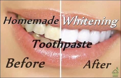 whiten  teeth naturally   homemade whitening