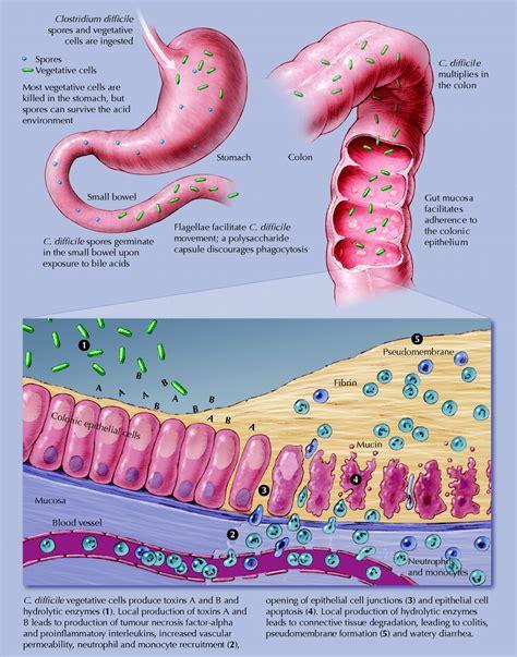 difficile causes symptoms treatment difficile