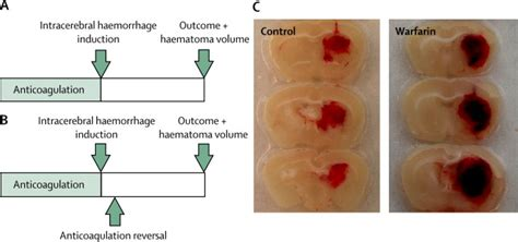 losing blood clots after c section intracerebral haemorrhage associated with antithrombotic