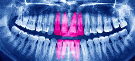 dental treatments   nhs choices
