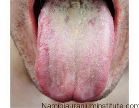 yeast infection symptoms fungal infection namibiauraniuminstitute