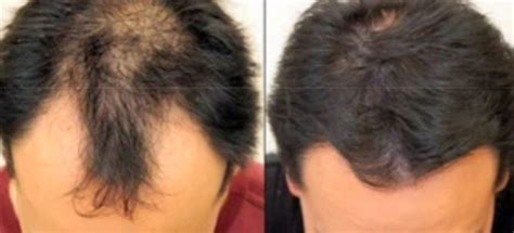 what is the cost of neografting the hair line neograft hair restoration in buckhead atlanta for male