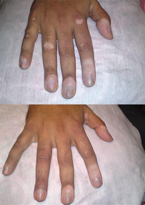 gallery vitiligo tattoo