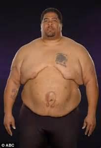 weight management md wellness weight management center trainers