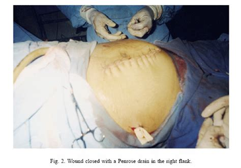 how is c section performed meet the woman who performed caesarean section on herself