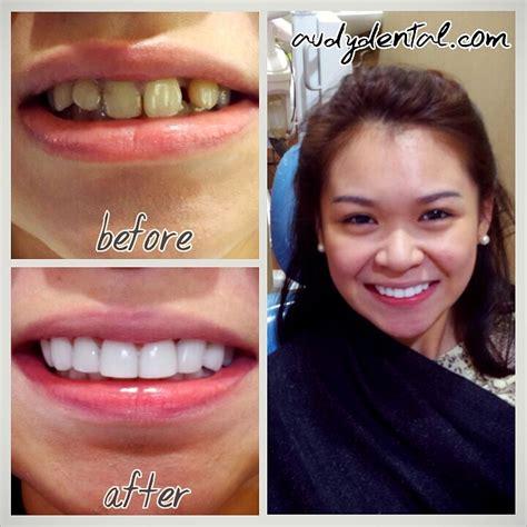 Veneer Pemutih Gigi veneers gigi artis di jakarta audy dental