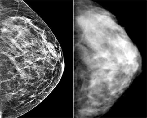 mammogram images images of mammograms