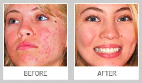 proactiv dark spot corrector before and after skin picking stigma