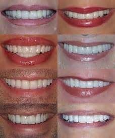 tooth color chart image gallery teeth color