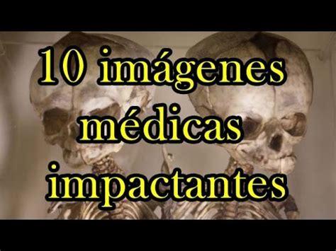 Imagenes Medicas Impactantes | hqdefault jpg