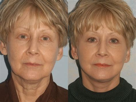 sixty year old face 52 best facelift before after photographs images on