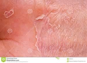 eczema closeup stock photos image 3866263
