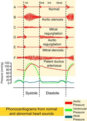 aortic stenosis diagram 7 best physiology images on physiology aortic