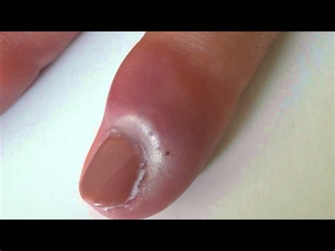 nail bed infection youtube