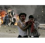 Victims Walks Away After A Car Bomb Attack In Baghdad March 15 2007
