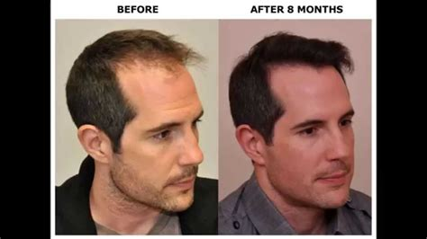 hair transplant before and after before after hair transplant using artas robot for fue
