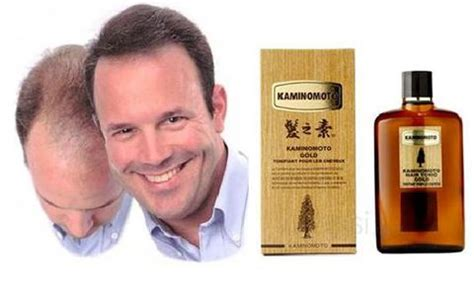Kaminomoto Hair Growth Accelerator For Beard thu盻祖 m盻皇 t 243 c th蘯 o d豌盻 c nh蘯ュt b蘯 n k 237 ch th 237 ch m盻皇 t 243 c nhanh