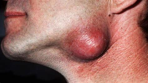 sebaceous cyst method for abscess incision drainage cystbursting