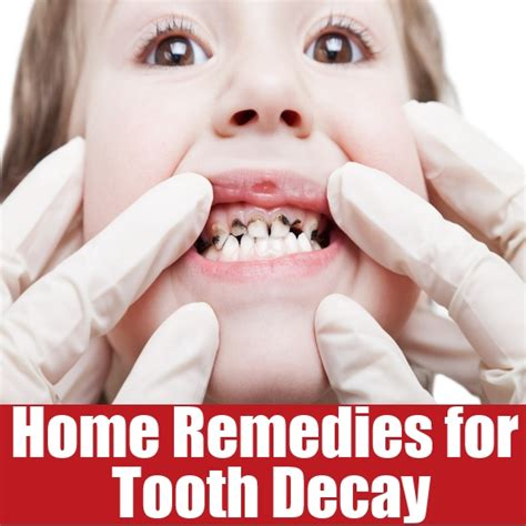 home remedies for tooth decay search home remedy
