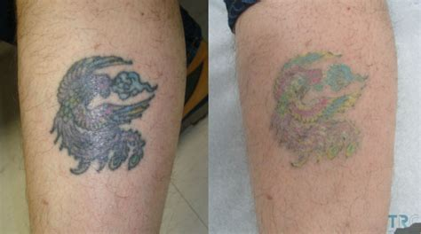 colour tattoo removal before and after laser removal before and after 5 sessions