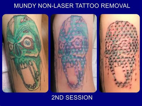 tattoo removal second session 2nd session done on tatt2away removal