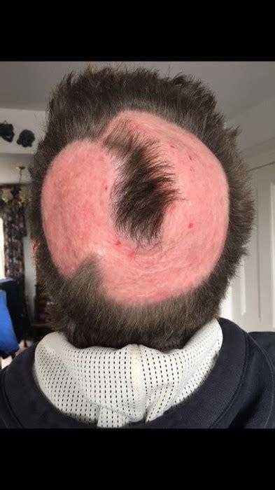 quemadura cuero cabelludo por tinte joven quiso sumarse a la tendencia cabello de unicornio