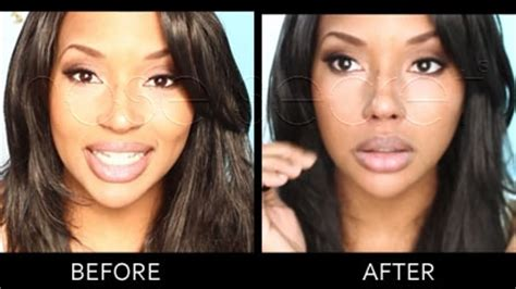 nose shaper before and after non surgical nose job before and after nose reshaper