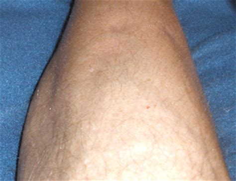 cyst on leg lumps skin on leg pictures photos
