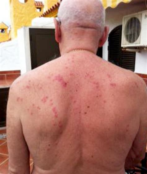 hotel bed bugs compensation man wins compensation after quot eaten alive by bedbugs quot at
