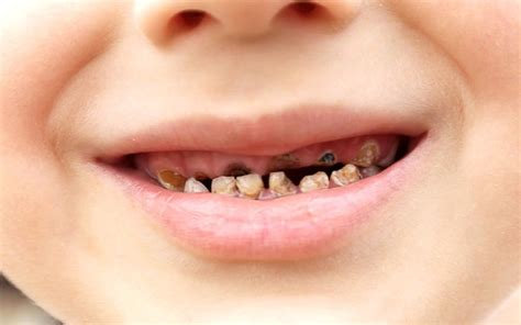rotten teeth the new tooth decay treatment that could see fillings become an unpleasant memory