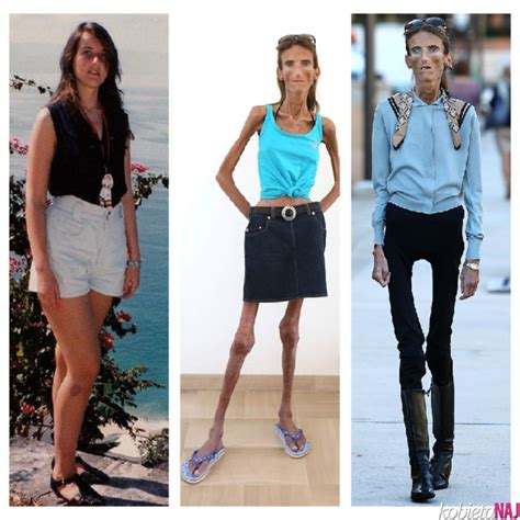 Valeria Levitin, the skinniest woman, weighing only 25kg