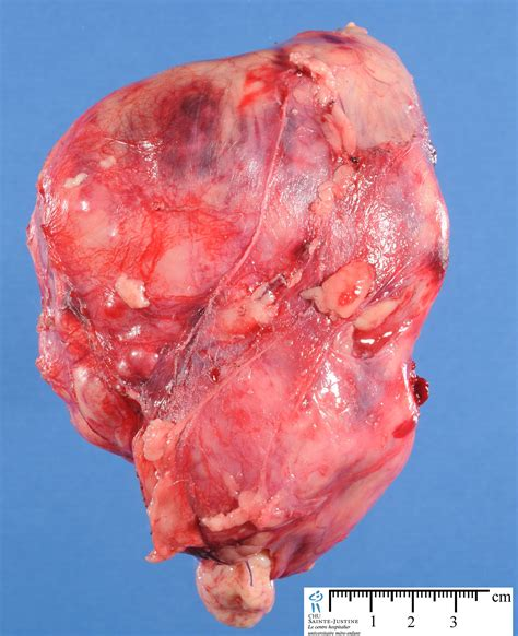 tumor pictures renal malignant rhabdoid tumor humpath human pathology