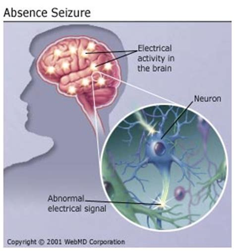 what causes seizures absence seizure causes duration what happens and more
