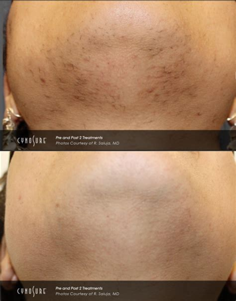laser hair removal for african americans facial hair growth before and after laser hair removal