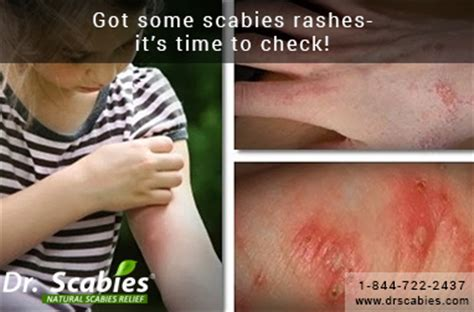 are bed bug bites contagious consumer health answers got some scabies rashes it s