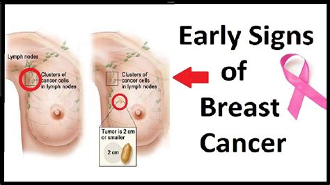 breast cancer breast cancer symptoms early signs www pixshark