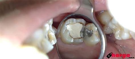Biaya Pemutihan Gigi Dengan Laser update biaya tambal gigi berlubang di dokter gigi