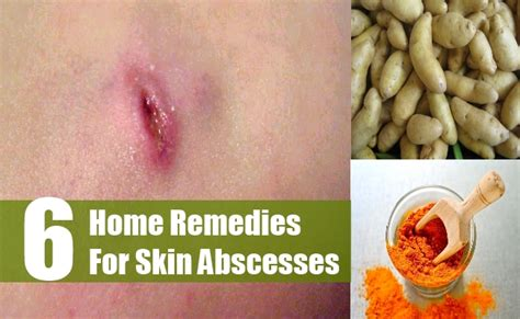 home remedies for abscess in cats bacterial vaginosis