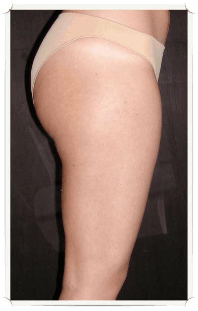 liposuzione interno cosce liposcultura e liposuzione dr francesco romeo